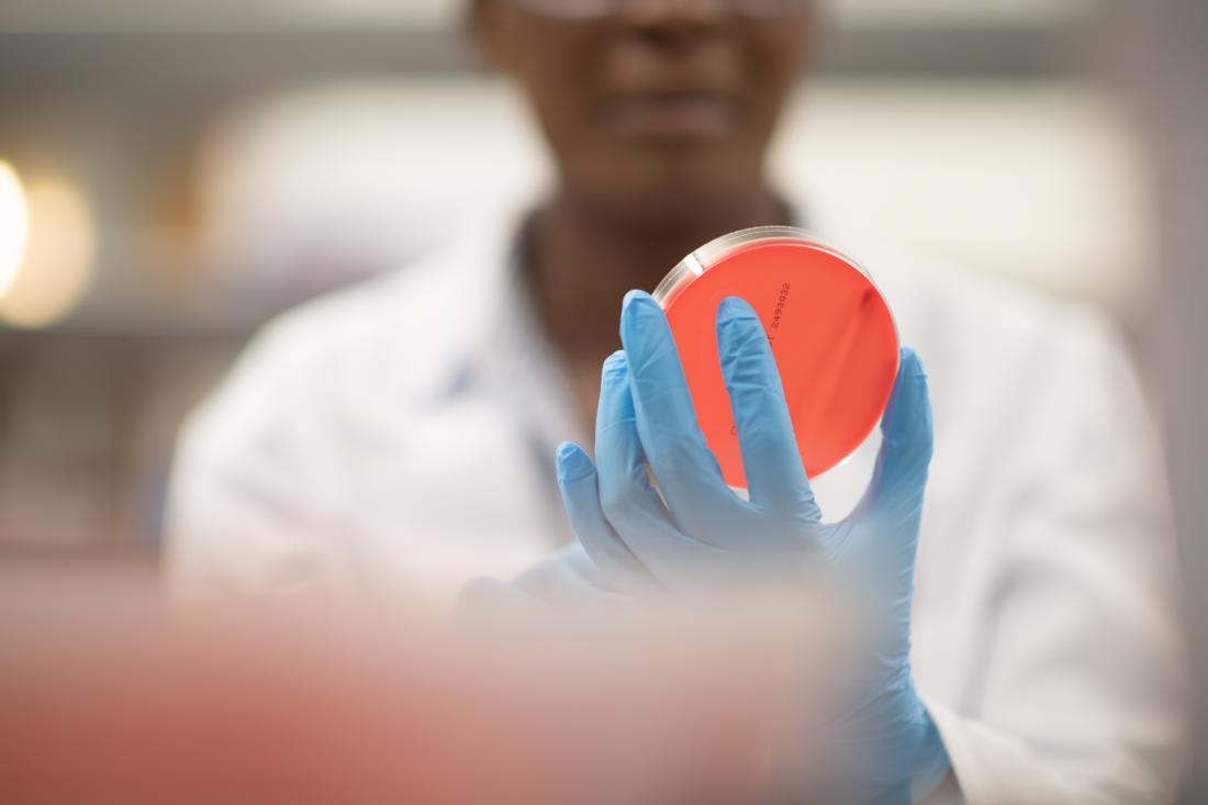 scientist looking at a petri dish